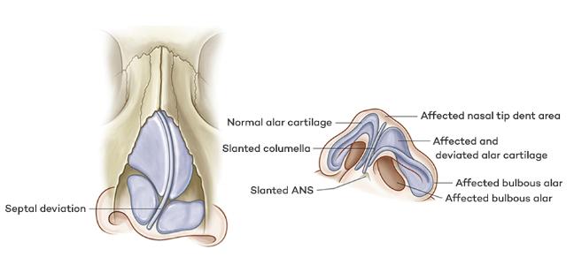 Rhinoplasty / Nasal Renovation / Cleft Lip Nose-Plastic